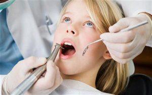Có nên trám răng Sealant cho trẻ em? 2