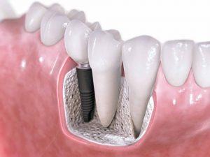 Giải pháp trồng răng giả vĩnh viễn có độ bền cao nhất