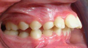 Giải tỏa nỗi lo khi niềng răng 1