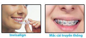 Giải tỏa nỗi lo khi niềng răng 3