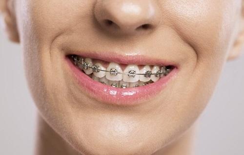 Niềng răng cho người lớn-1
