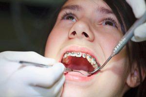 Quy trình niềng răng an toàn 3