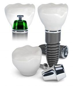Khám phá quy trình trồng răng implant
