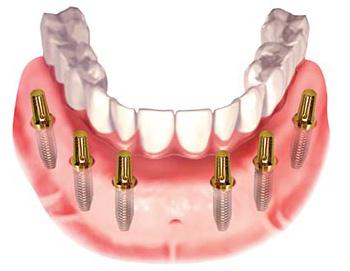 Cấy ghép implant cho người cao tuổi mất nhiều răng 2