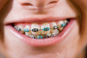 Khi niềng răng mắc cài cần chú ý những gì? 1