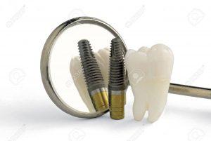 Những băn khoăn thường gặp khi trồng răng implant