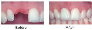 Điểm mặt những yếu tố làm ảnh hưởng chi phí trồng răng implant