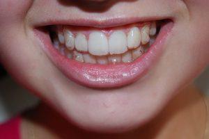 Niềng răng có kết hợp phẫu thuật hàm được không