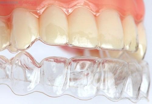 Niềng răng không nhổ răng 2