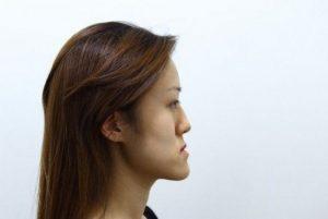 Cẩm nang điều trị móm bằng niềng răng bạn nên biết