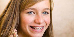 Cẩm nang điều trị móm bằng niềng răng bạn nên biết 2