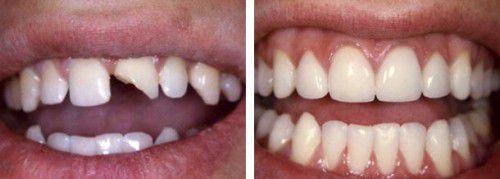 Ưu điểm khi bọc răng sứ veneer
