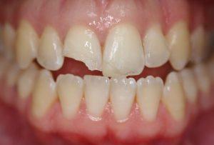 Nguyên nhân gây mẻ răng