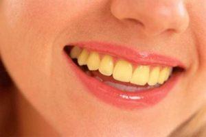 Có nên tẩy trắng răng hay không thưa bác sĩ