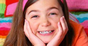 Những điều cần biết về niềng răng cho trẻ em
