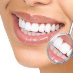 Thực hiện tẩy trắng răng bằng vỏ chuối hiệu quả