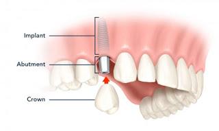 Cấy ghép răng implant tiêu chuẩn quốc tế 1