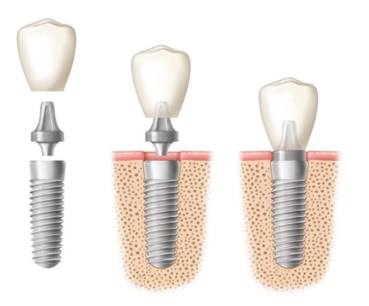 Kỹ thuật trồng răng Implant 1