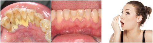 Lấy cao răng có ảnh hưởng không? Cần tư vấn gấp 1