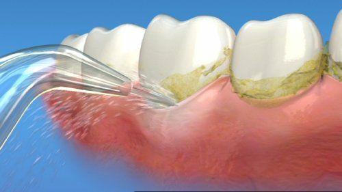 Lấy cao răng ở đâu an toàn và hiệu quả? 2