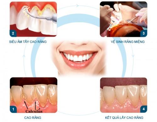 Lấy cao răng ở đâu an toàn và hiệu quả? 3