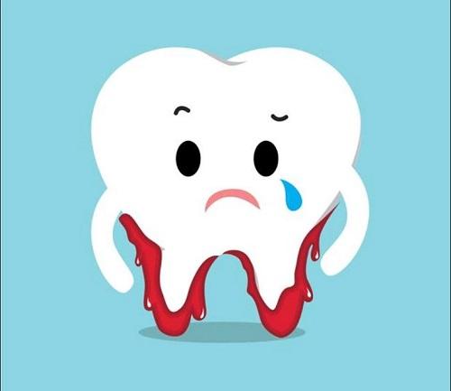 Nhổ răng hàm có ảnh hưởng gì không? 1