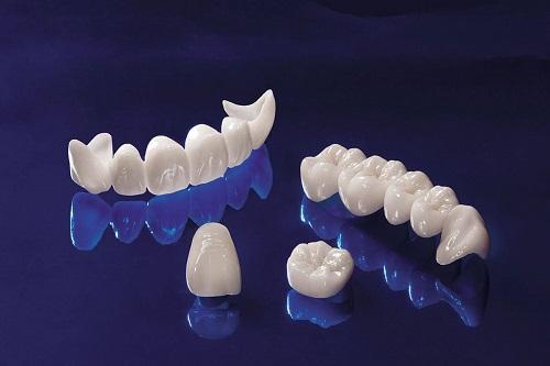 Bọc răng sứ có tốt không? Nên chọn loại răng sứ nào