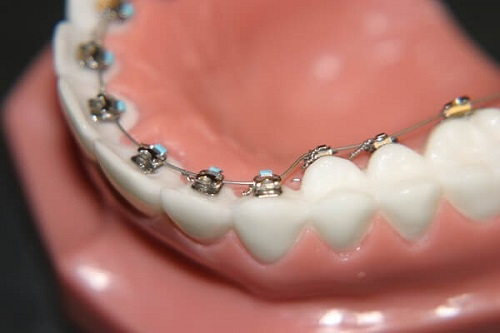 Niềng răng mắc cài kim loại giá bao nhiêu? Cần nắm bắt những thông tin nào