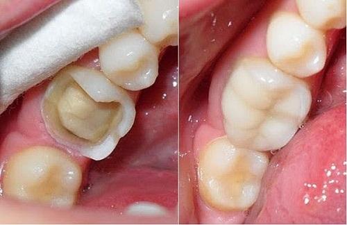Thông tin cần biết - Bọc răng hàm bị sâu có đau không?