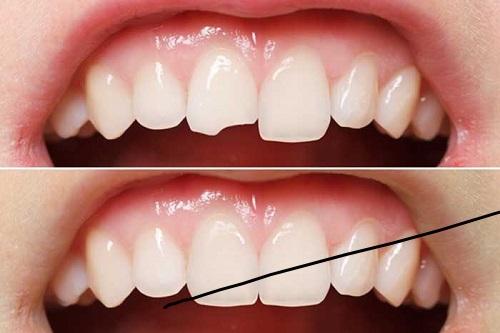 Trám răng thẩm mỹ ở đâu tốt hiện nay? Cần lưu ý điều gì 2