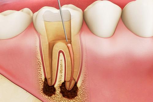Trám răng lấy tủy giá bao nhiêu? Tìm hiểu cách thực hiện 1
