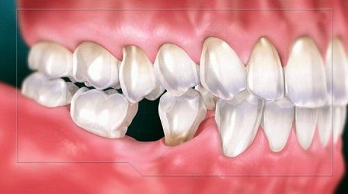 Kỹ thuật trồng răng sứ không mài cho bạn 1