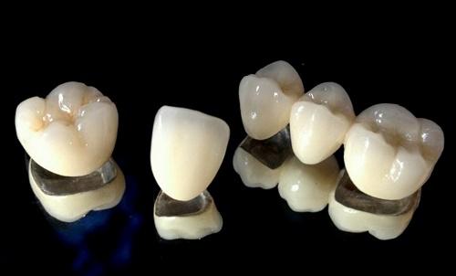 Có nên trồng răng sứ kim loại không? Cần lưu ý điều gì 1