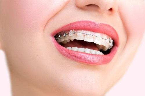 Niềng răng ăn cháo bao lâu là được? 1