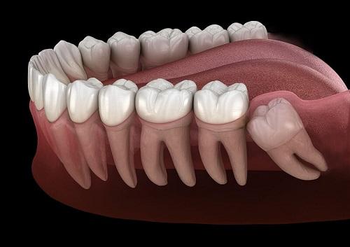 Đau răng khôn dẫn đến đau tai - Nha khoa tư vấn điều trị 2