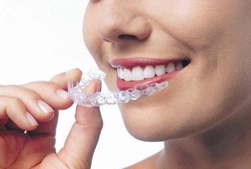 Dụng cụ niềng răng tại nhà 3 giai đoạn - Tìm hiểu ngay 3