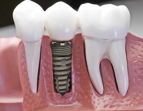 Trồng răng có nhanh không? Tham khảo kỹ thuật phục hình 1