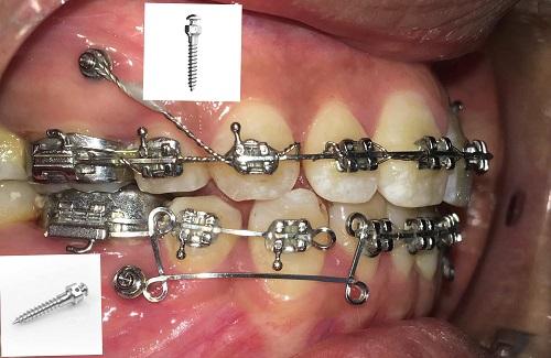Cắm vít niềng răng bao lâu là được? 1
